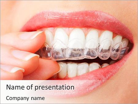 Шаблон презентации Отбеливание зубов - Титульный слайд